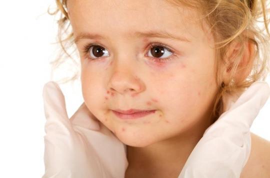 Châtenay-Malabry : les parents redoutent une épidémie de gale