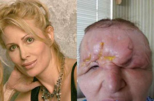 Floride : une femme défigurée après une chirurgie esthétique