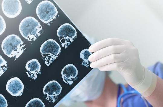 Alzheimer : un déficit d'activité des cellules immunitaires peut expliquer l'apparition de la maladie