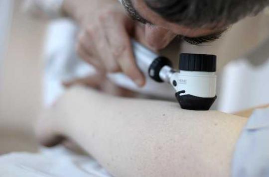Mélanome avancé : une virothérapie bientôt acceptée en Europe