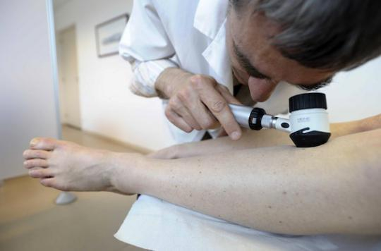 Cancer de la peau : la journée de dépistage pour les personnes à risques