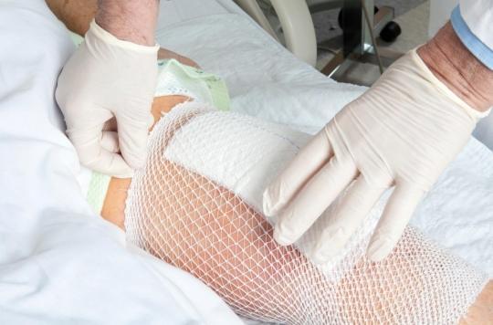 Prothèse du genou : certaines personnes ont plus de risque de complications après l'opération