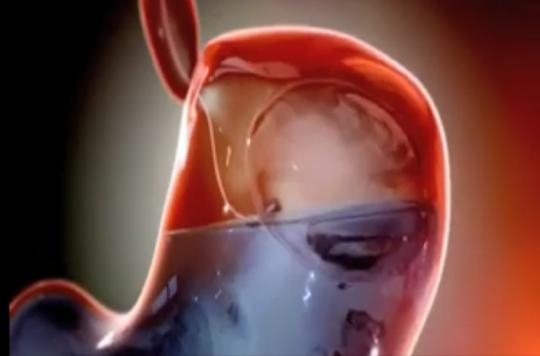 Obésité : un ballon se gonfle dans l'estomac pour manger moins