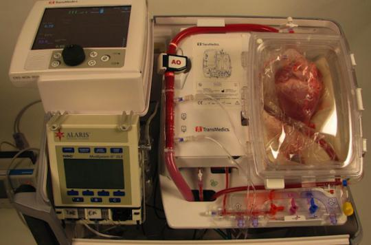 Mélanome : les transplantés deux fois plus exposés