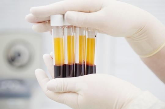 Dérivés du sang : des pénuries à prévoir jusqu'à la fin de l'année