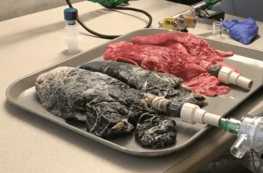 VIDEO. Une infirmière montre les poumons noircis d'un patient qui a fumé un paquet de cigarettes par jour pendant 20 ans