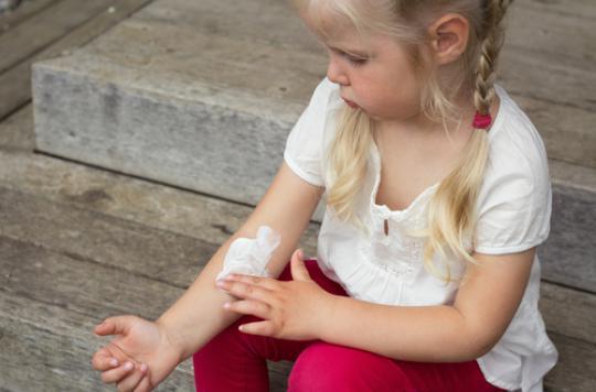 Psoriasis : 100 000 enfants touchés en France