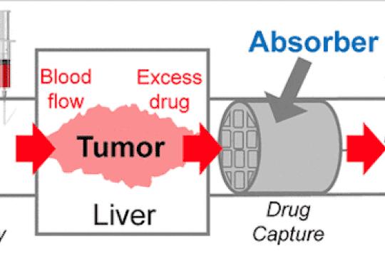 Cancer et chimiothérapie : une éponge en 3D pour absorber le surplus de médicaments