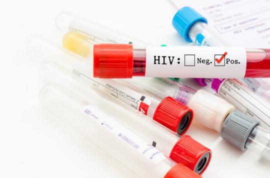 VIH : un Européen sur sept ignore sa séropositivité