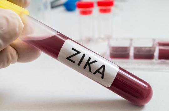 Zika :  un registre international pour recenser les femmes exposées