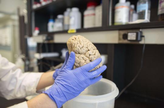 Cerveau : mieux vaut en avoir un de petite taille