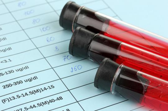 Plus de 40 000 ados sont morts du sida en 2015
