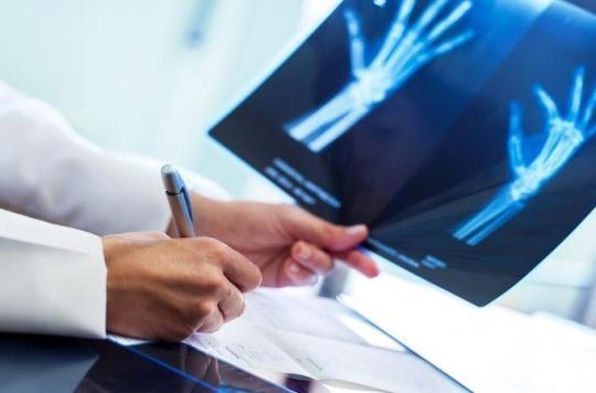 Grève des radiologues : jusqu'à 100 % des cabinets fermés
