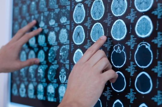 Utiliser l'IRM pour prédire le risque de suicide