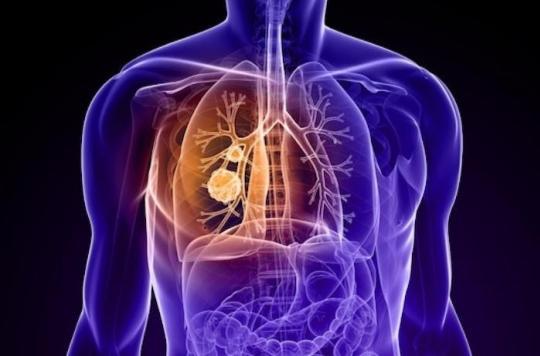 Une nouvelle immunothérapie prometteuse dans le cancer du poumon métastasé