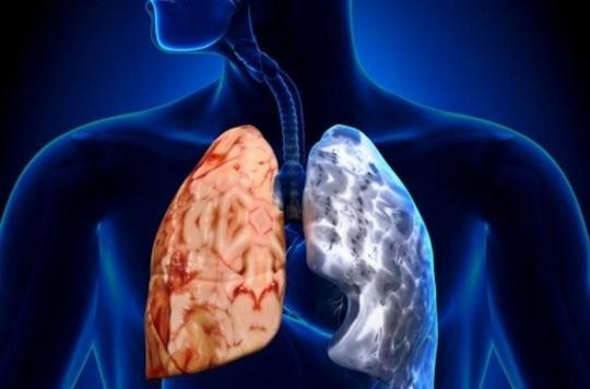 Bronchite chronique de l'adulte : les maladies de l'enfance sont les principales responsables