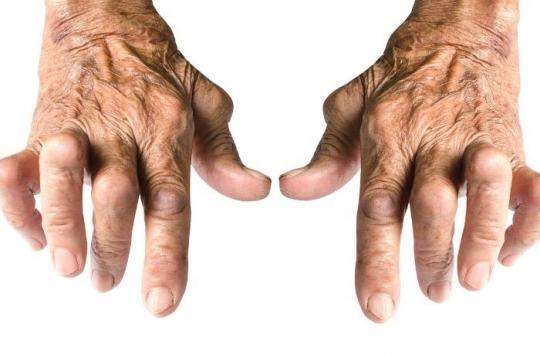 On peut prédire l'efficacité des traitements contre la polyarthrite rhumatoïde