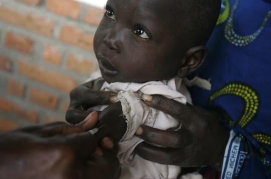 La rougeole frappe durement la RDC