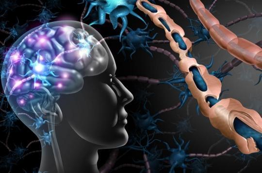 Sclérose en plaques : une nouvelle molécule freine sa progression