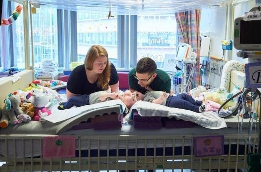 Soeurs siamoises : 11 heures d'opération pour séparer Erin et Abby