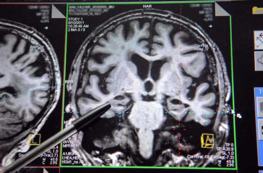 Alzheimer : des spécialistes sur la piste d'une forme de transmission