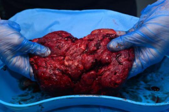 Manger le placenta : une mode qui présente des risques