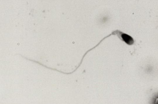 Des chercheurs français auraient conçu des spermatozoïdes in vitro