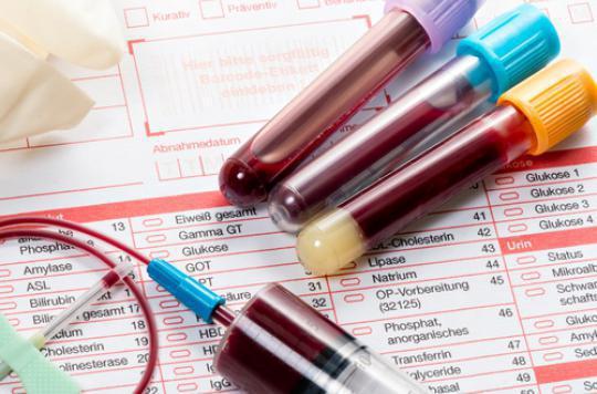Dépression : des tests sanguins pour évaluer l'efficacité des traitements