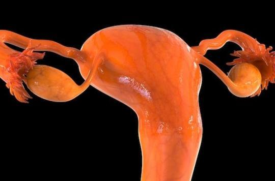 Une nouvelle association annonce une révolution dans le traitement des cancers de l'ovaire