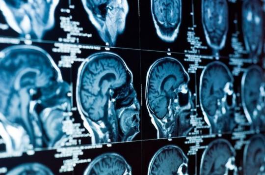 Un homme se fait retirer une énorme tumeur cérébrale de 2 kilos