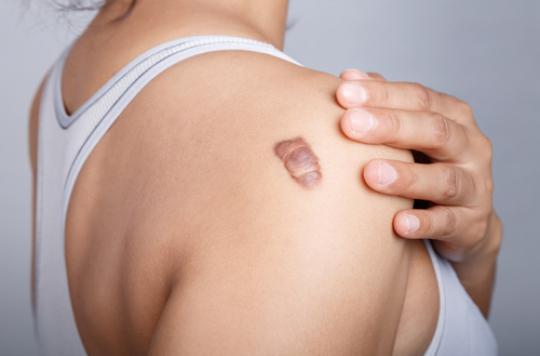 Il sera bientôt possible d'éviter les marques — Cicatrices