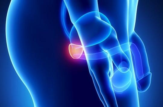 Cancer de la prostate: réduire les risques par la masturbation