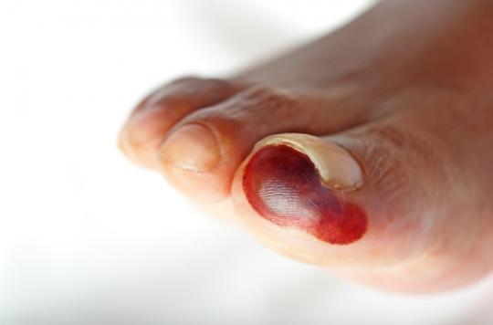 Diabète : 9 000 personnes amputées par an en France