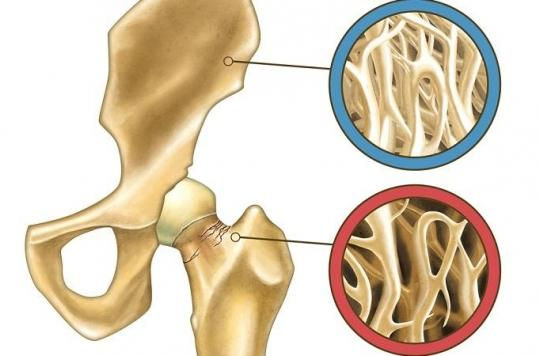 Quand faut-il craindre une ostéoporose ?