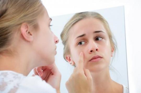 L'acné augmente le risque de dépression