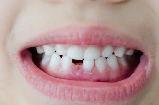 Dentition des enfants : attention aux sports de contact