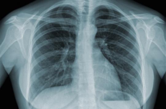 Cigarettes : un paquet par jour provoque 150 mutations génétiques par an
