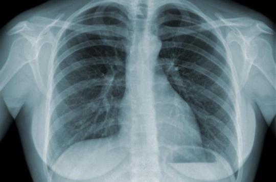 Poitiers : un cas de tuberculose au collège Isaac de l'Étoile