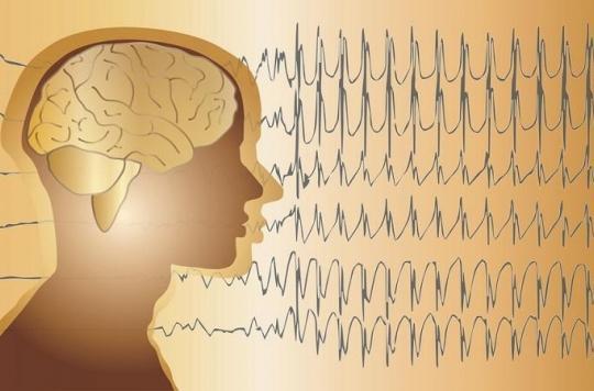 10 questions sur l'épilepsie