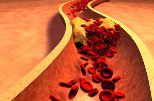 Cholestérol : découverte d'un gène participant à son élimination