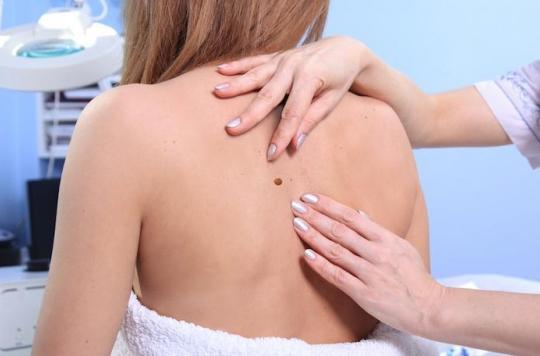 Cancer de la peau : l'ablation des ganglions inutile