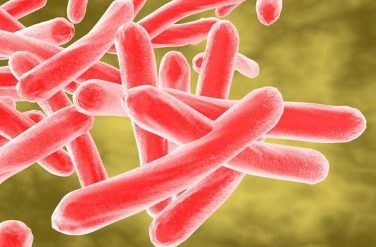 Tuberculose pulmonaire : un étudiant infecté peut contaminer 10 à 15 personnes