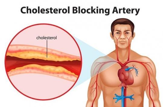 Cholestérol LDL, le principal annonciateur d'athérosclérose