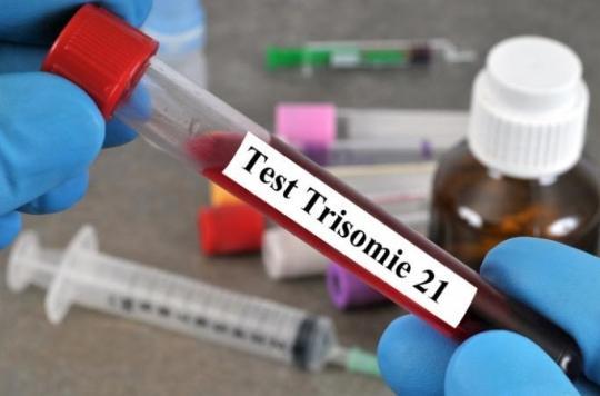 Grossesse : le dépistage de la trisomie 21 par prise de sang sera désormais remboursé