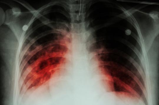 Une fillette de 4 ans meurt de la tuberculose — Côtes-d'Armor