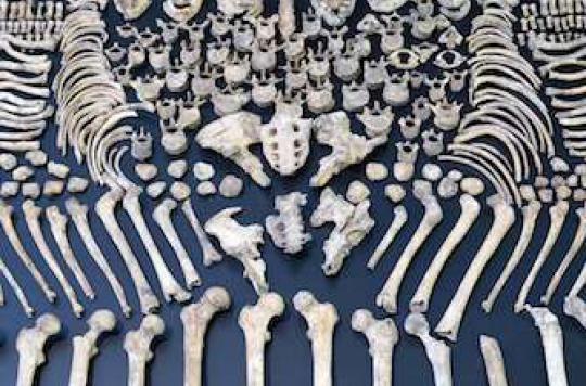 Ostéoporose : plus grave chez les hommes