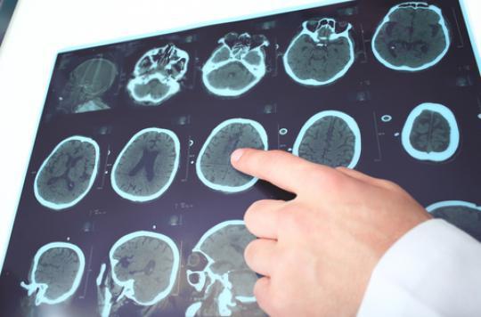 Alzheimer : observer les agrégats de protéines pour affiner le diagnostic