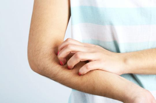 Urticaire : une personne sur cinq touchée