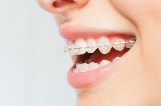 Des résines utilisées dans les appareils dentaires pourraient nuire à la fertilité