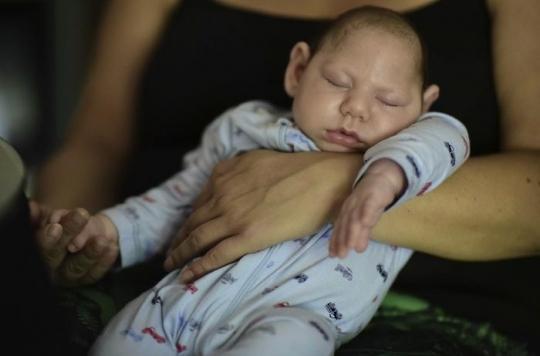 Zika : 10 % des femmes enceintes ont eu un enfant atteint de malformation